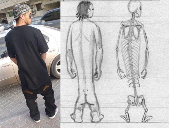 sag skeleton